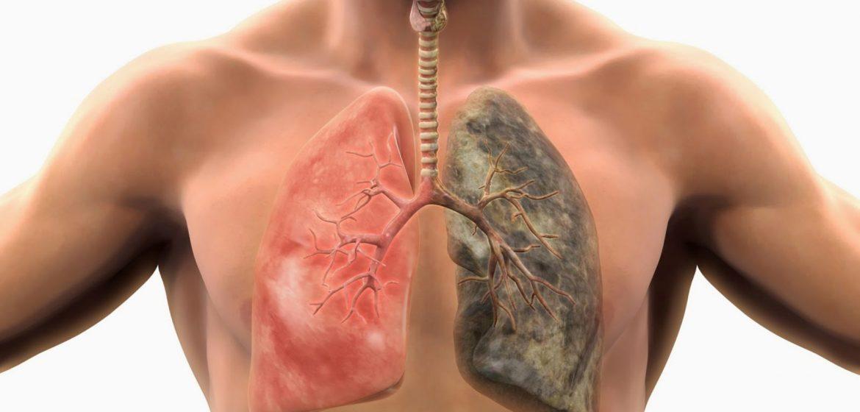 mușchiul plămânilor